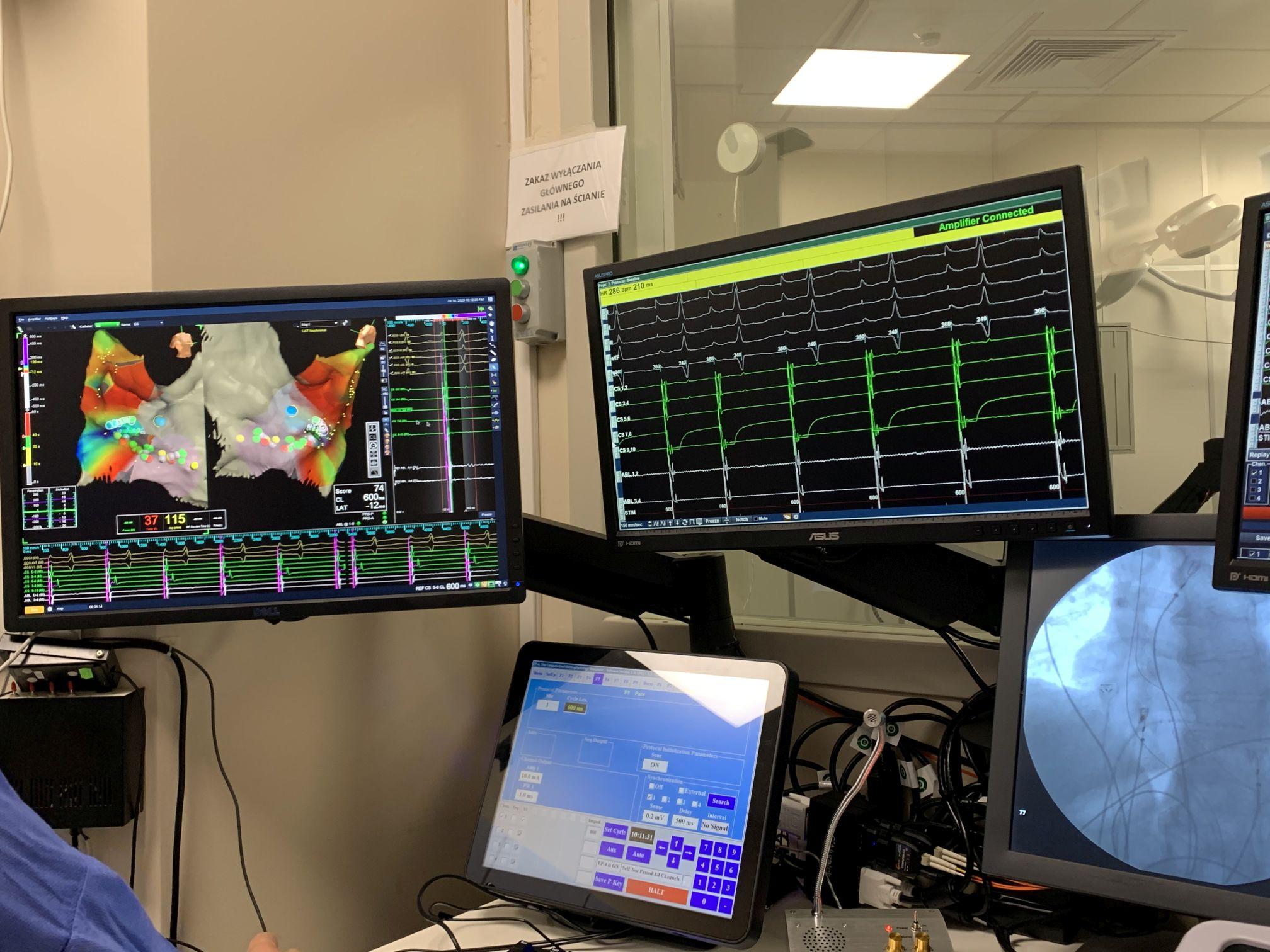 Technologia 3D służy kardiologom w bielskim szpitalu